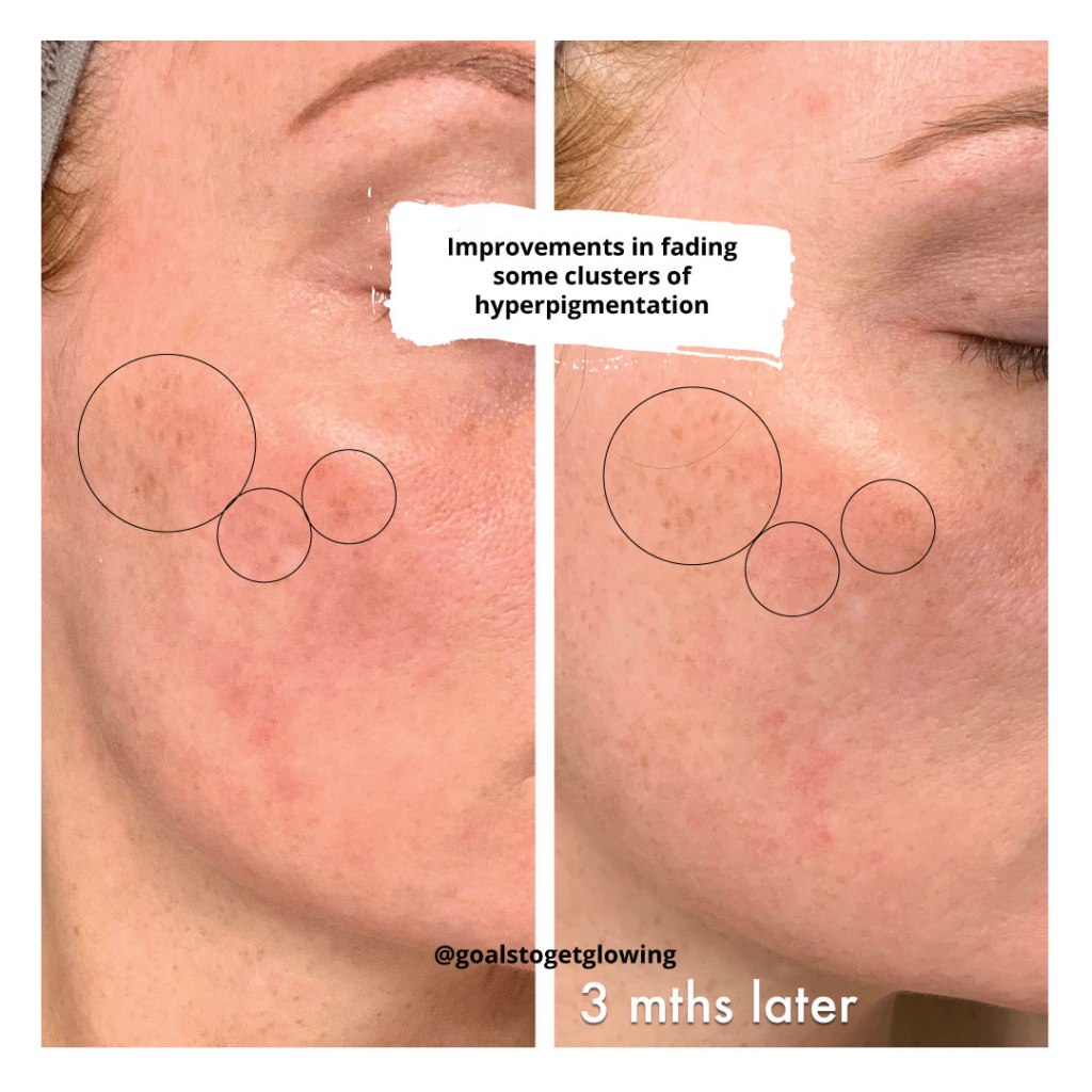 Obagi Medical Professional-C before and after 3 mths of use
